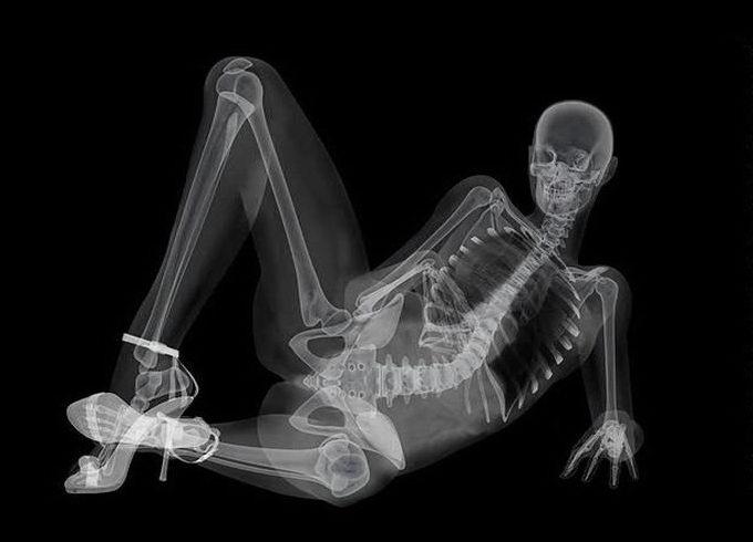 x-ray04.jpg.ac5bfee1a33d033126447305b421