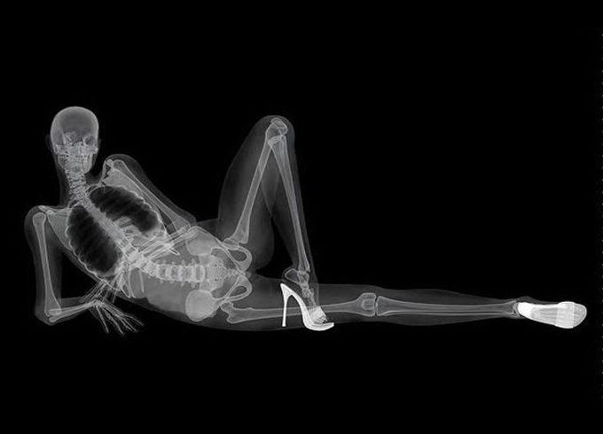 x-ray08.jpg.c1695d1d3062e5d3e7f0089bdf32